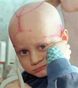 Anak Penderita Leukimia